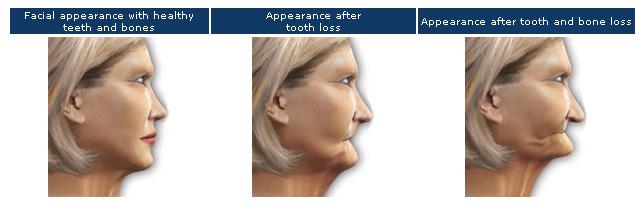 Do Dental Implants Stop Bone Loss Premier Dental